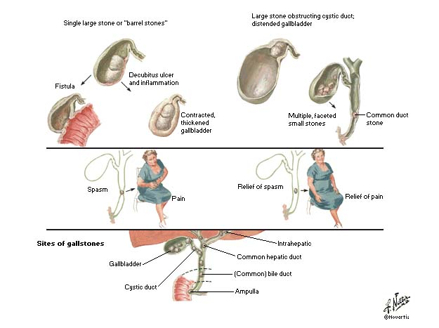 symptoms of gallbladder removed